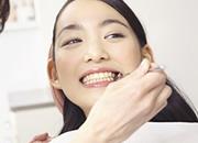 義歯(入れ歯)のイメージ